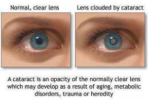 cataract_vs_normal_eye_new_york_new_jersey-300x205